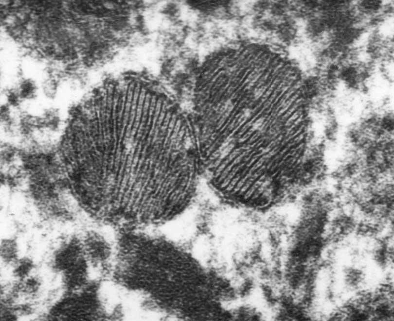 lamellar-granules-3web.jpg